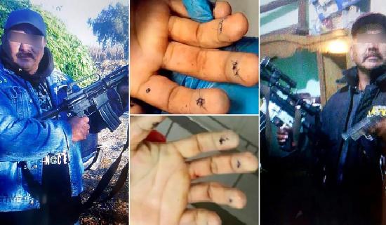 Grupo comando asesinó a un líder mafioso mientras se sometía a una cirugía estética