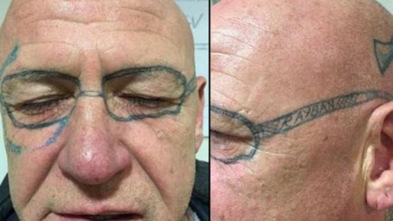 Le tatuaron anteojos en la cara en una despedida de solteros