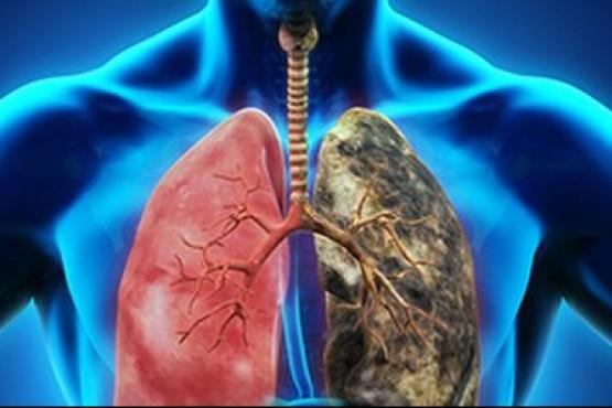 El más mortal de todos: tres vidas por minuto se cobra el cáncer de pulmón