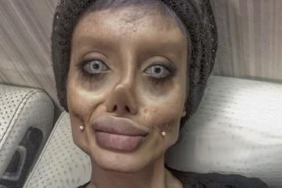 Una joven se sometió a 50 cirugías para parecerse a Angelina Jolie