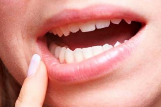 Atención para la detección temprana del cáncer bucal