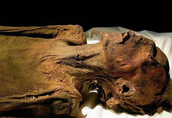 El gesto de espanto de este cuerpo intriga desde hace más de un siglo a los egiptólogos. Foto:Museo Egipcio de El Cairo.