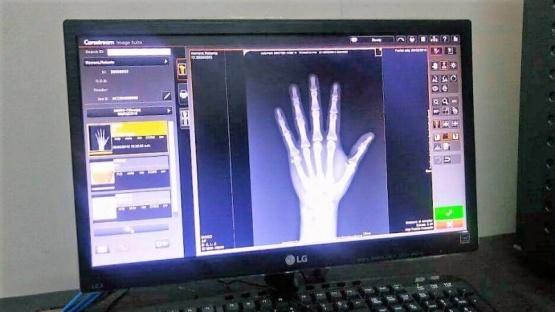 El Hospital cuenta con un nuevo sistema de radiología digital