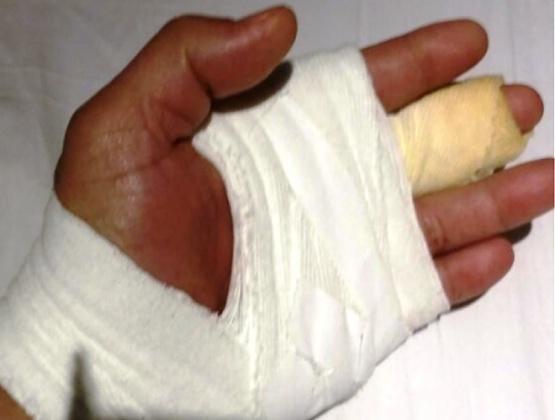 Al hombre se le realizó una sutura en el dedo medio.