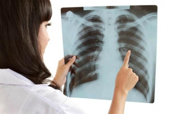 En Argentina se notifican más de 10 mil casos anuales de tuberculosis