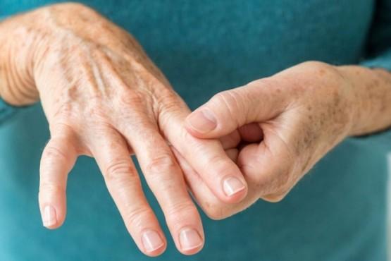 Prohibieron unas cápsulas para paliar los síntomas de la artritis