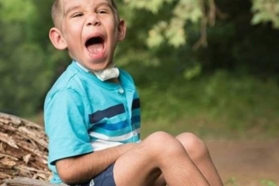 La historia del primer chico argentino diagnosticado con el extraño síndrome de Cantú