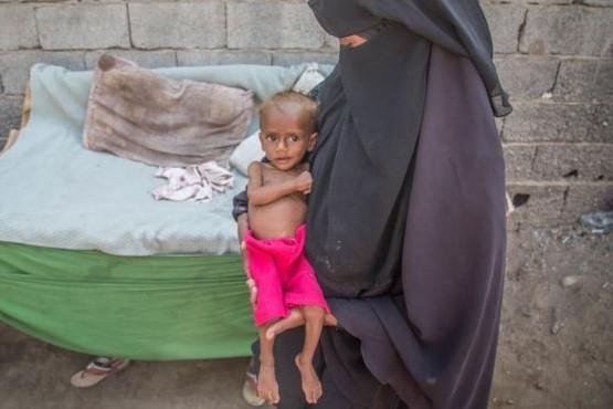 85.000 niños han muerto por malnutrición