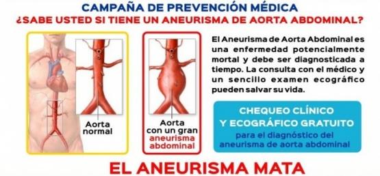 La importancia de la prevención del aneurisma