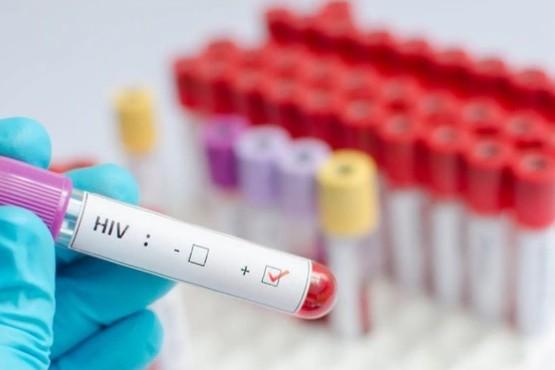 Un estudio francés descubrió una fórmula que permite eliminar el virus del HIV