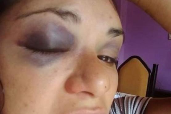 Brutal golpiza a una mujer en Comodoro