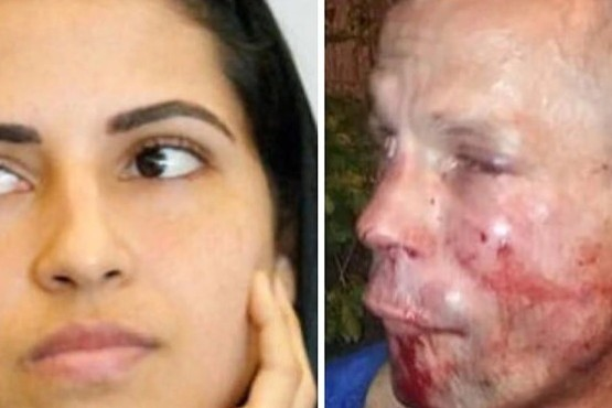 Intentó robarle el celular a una luchadora de UFC y terminó con el rostro destrozado