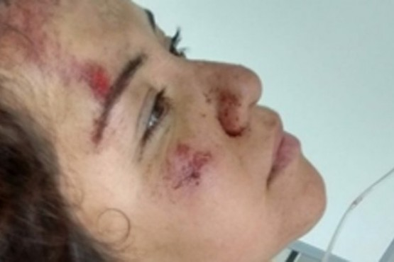 El conductor que atropelló a la chica santacruceña se presenta ante la Justicia