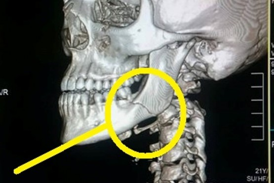 Golpeó salvajemente a una joven hasta fracturarle la mandíbula