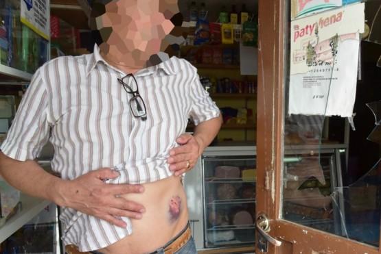 Comerciante salvó su vida de milagro al desviarse el balazo de los asaltantes