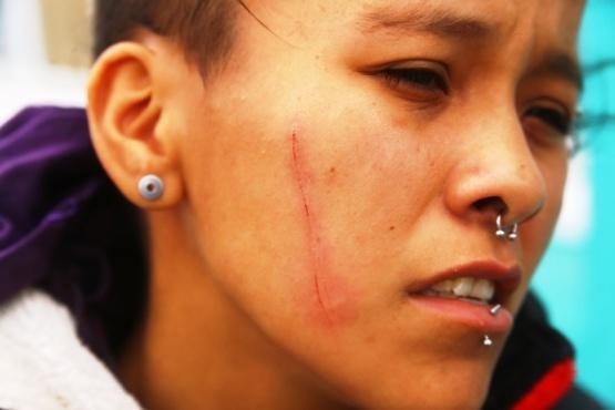 Tres personas resultaron heridas tras ser agredidas por otra con un cuchillo
