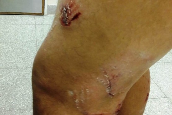 Un hombre sufrió serias heridas al ser atacado por una jauría de perros