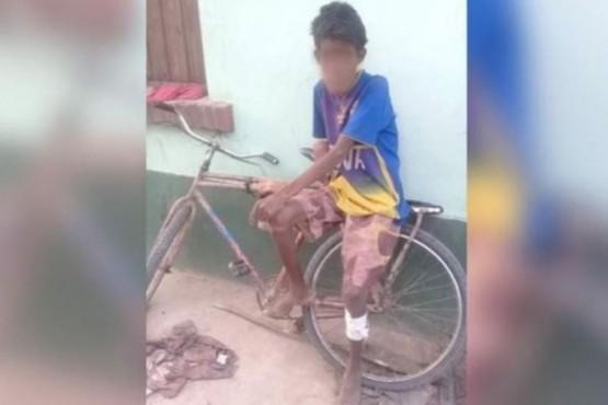 Murió un adolescente wichi de 14 años víctima de desnutrición