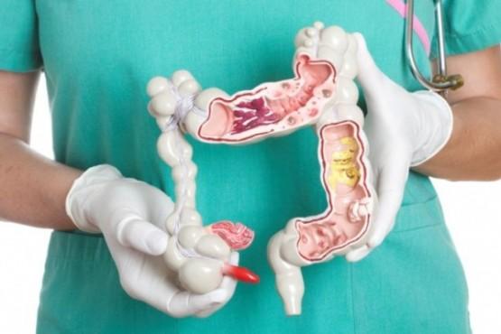 Cáncer de colon: el diagnostico precoz posibilita un 90% de curación