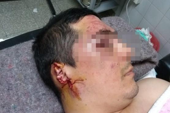 Fue golpeado por un vecino y luego atacado por su perro