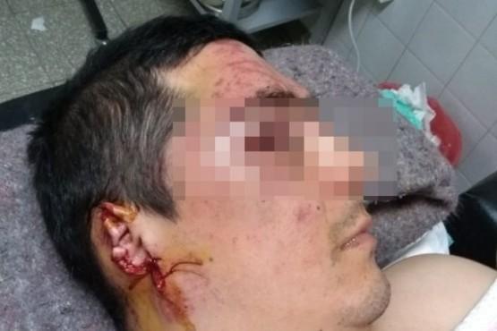 Detuvieron al dueño del pitbull que atacó a un hombre