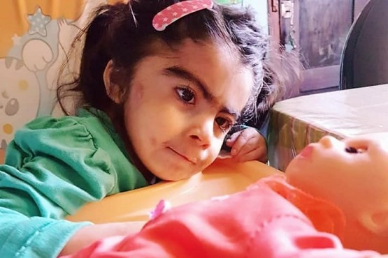 La niña calafatense que nació con síndrome de Cornelia de Lange