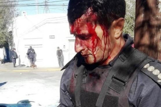 Fiscalía hará más imputaciones por policías heridos