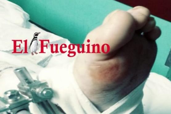Reimplantan con éxito un pie a hombre que sufrió un accidente con un cuatriciclo