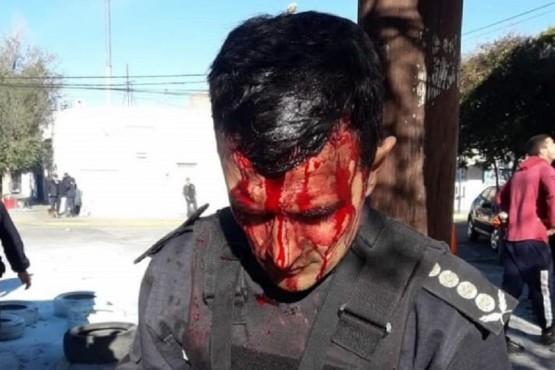 Por primera vez en un proceso judicial policías heridos en un procedimiento serán querellantes
