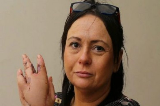 Un gato arañó a una mujer y estuvo más de un mes internada al borde de la muerte