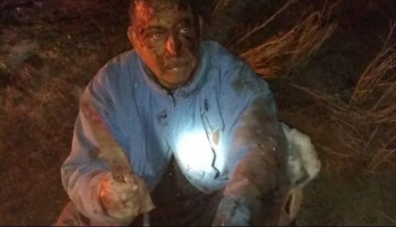El campesino,de 62 años, terminó muy malherido. Foto: gentileza Policía de Río Negro