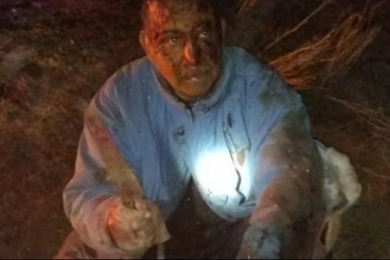 El dramático caso del hombre que luchó cuerpo a cuerpo con un puma para defender a su perro