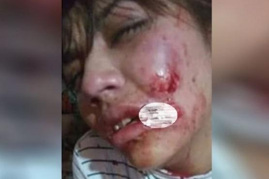 Un joven atacó a su novia y le arrancó parte del labio