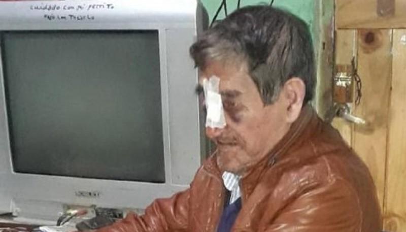 Hombre golpeado y robado en su vivienda.