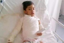 """""""Todos por Jesús"""": campaña solidaria por un niño que sufrió quemaduras"""