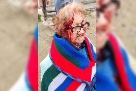 Una abuela de 88 años fue atacada ferozmente por cuatro perros