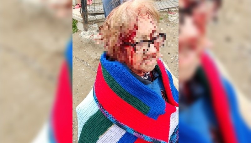 La mujer fue mordida en su cabeza.