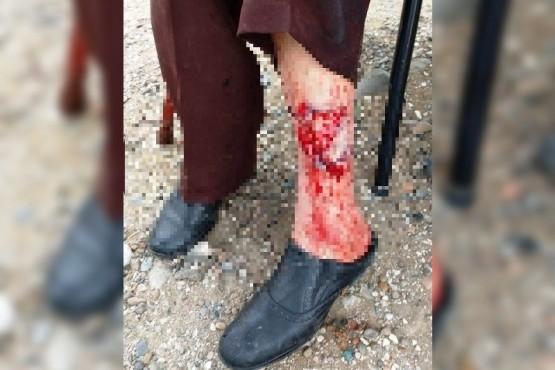 Así le quedó la pierna herida a la mujer.
