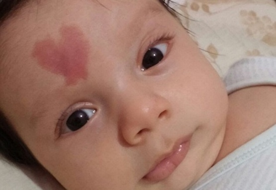 Nació con una mancha en forma de corazón en su frente y se volvió viral