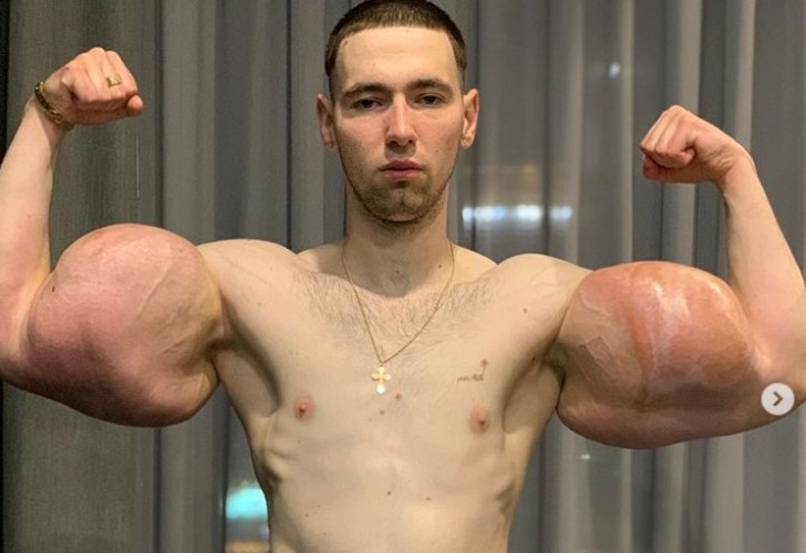 Kirill Tereshin tiene 23 años y comenzó a inyectarse aceite en sus brazos desde muy joven.