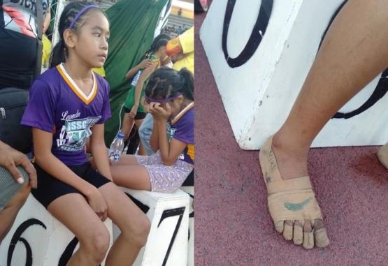 La imagen de esta nena y sus pies se viralizaron rápidamente. Crédito: Facebook Predirick Valenzuela