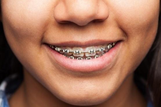 Prohiben comercializar producto de ortodoncia.