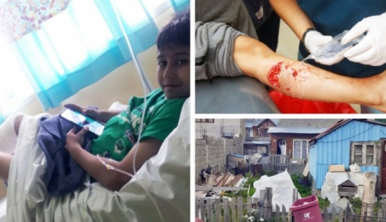 El nene tuvo que ser atendido en el hospital. (Tierra del Fuego Info)