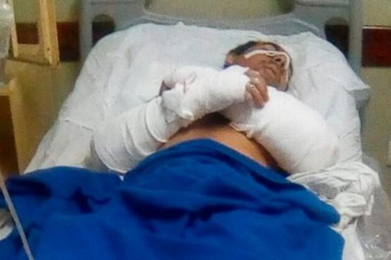 Prestes Barbosa fue encontrado herido en el monte