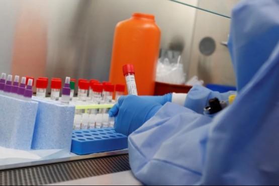 Coronavirus en Argentina: confirman 24.086 casos positivos y 399 muertes