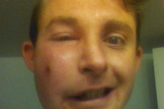Lo picó una viuda negra mientras dormía y estuvo a punto de quedar ciego