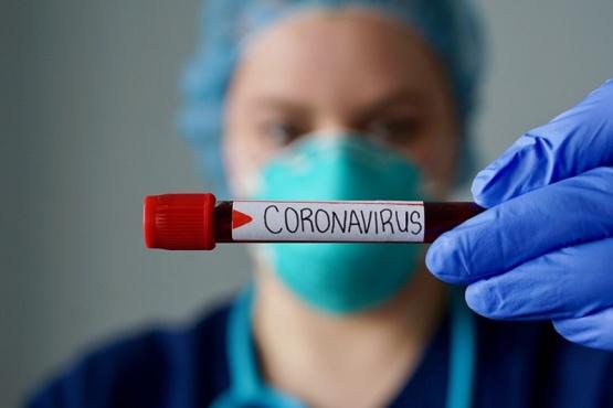 Coronavirus positivo.