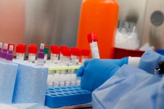 101 muertes por Coronavirus en Argentina