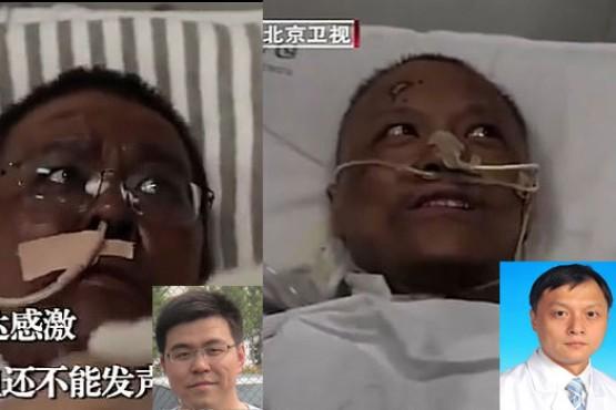 Médicos chinos en estado crítico se despertaron con su piel oscurecida