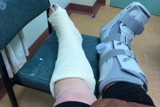 Una mujer se fracturó los dos tobillos mientras intentaba hacer un reto de TikTok